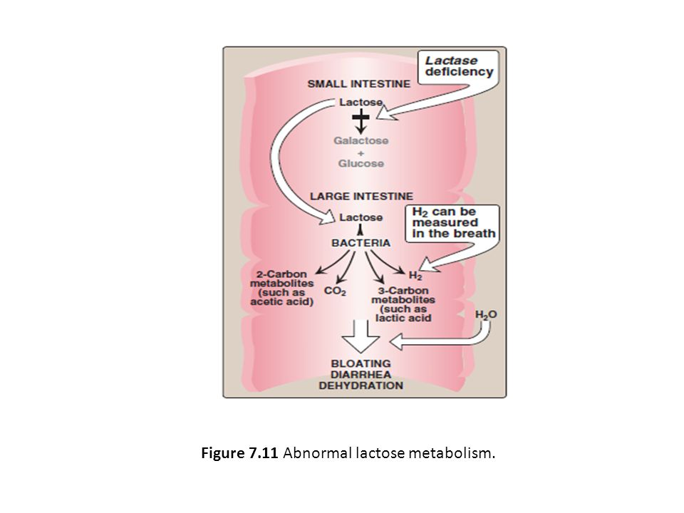 Figure 7.11 Abnormal lactose metabolism.