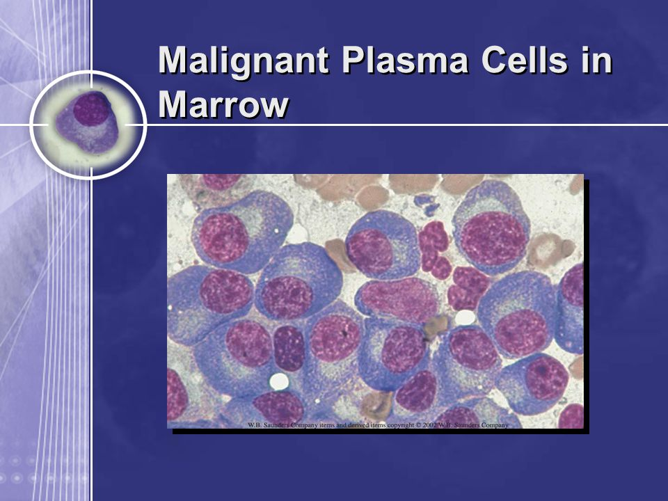 Malignant Plasma Cells in Marrow