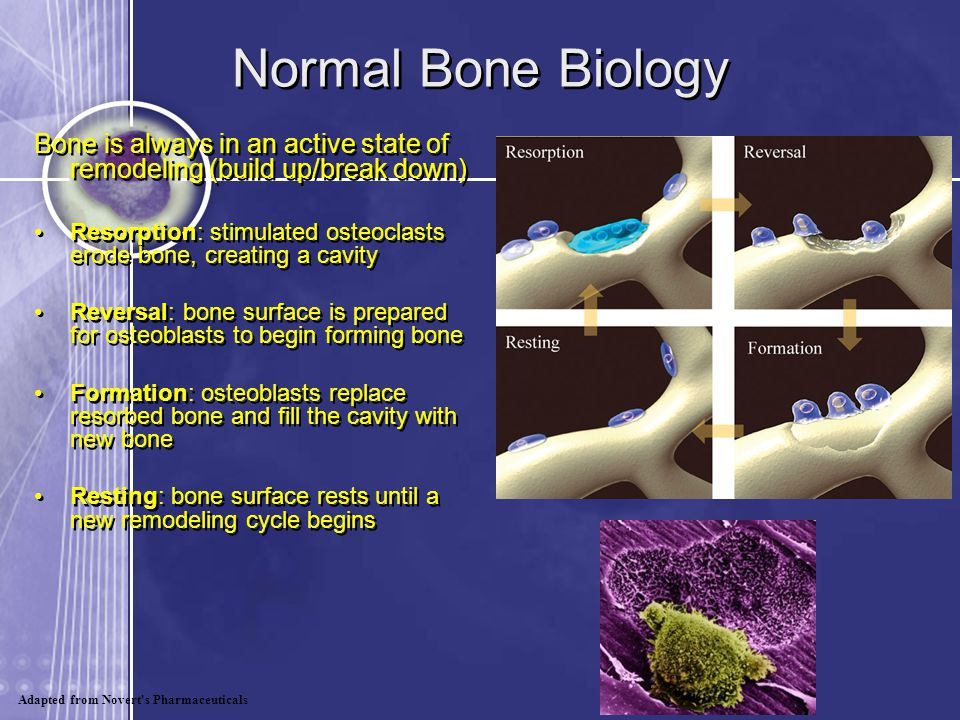 Normal Bone Biology Bone is always in an active state of remodeling (build up/break down)