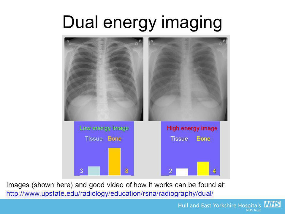 Dual energy imaging Images (shown here) and good video of how it works can be found at: