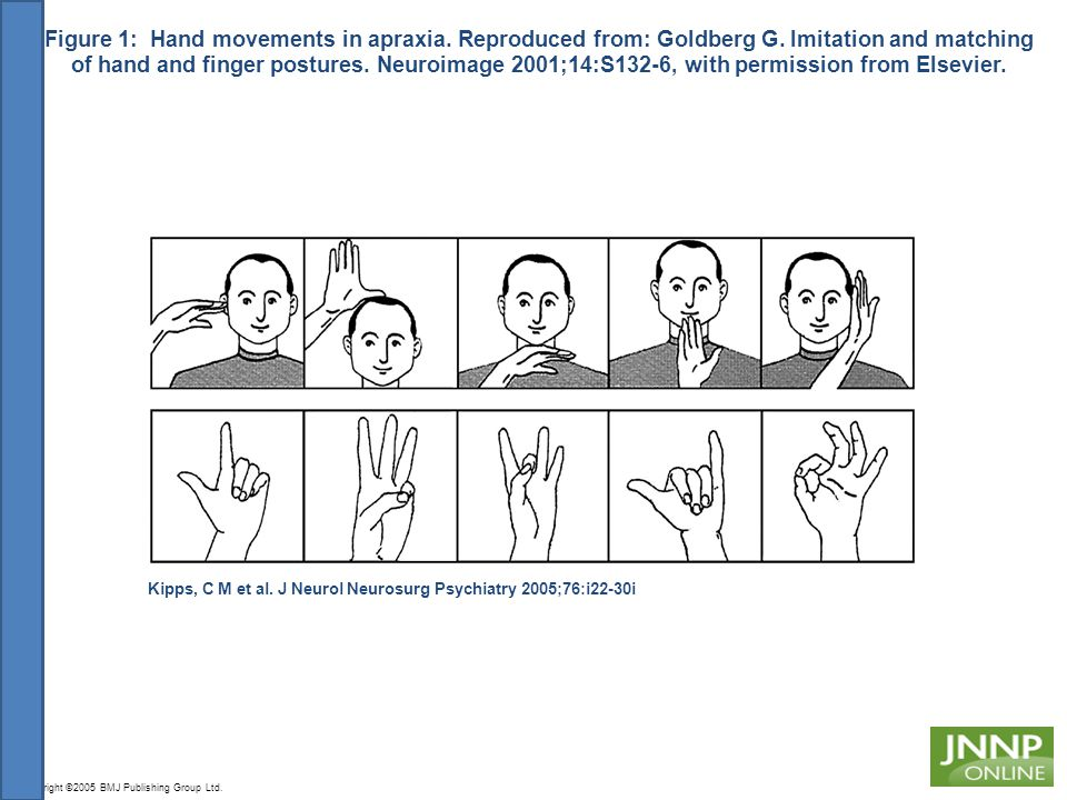 Figure 1: Hand movements in apraxia. Reproduced from: Goldberg G