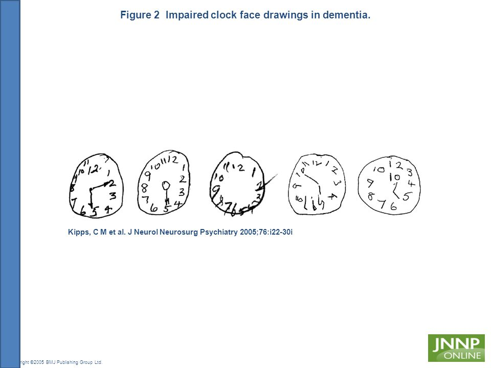 Figure 2 Impaired clock face drawings in dementia.