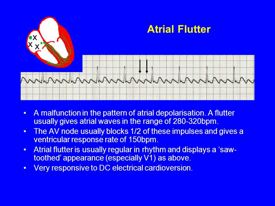 Atrial Flutter x. x. x. A malfunction in the pattern of atrial depolarisation. A flutter usually gives atrial waves in the range of 280-320bpm.