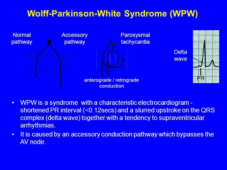 Wolff-Parkinson-White Syndrome (WPW)