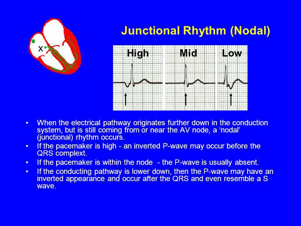 Junctional Rhythm (Nodal)