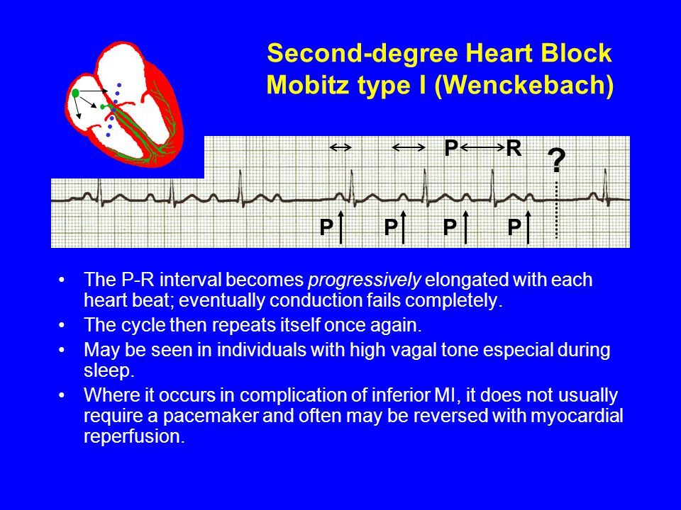 Second-degree Heart Block Mobitz type I (Wenckebach)