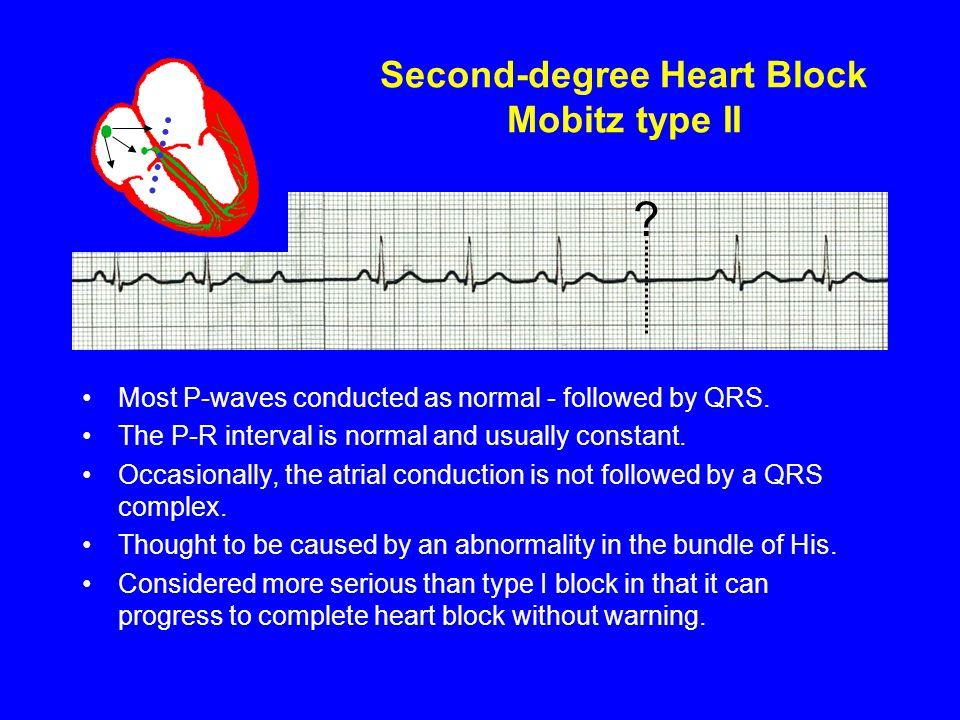 Second-degree Heart Block Mobitz type II