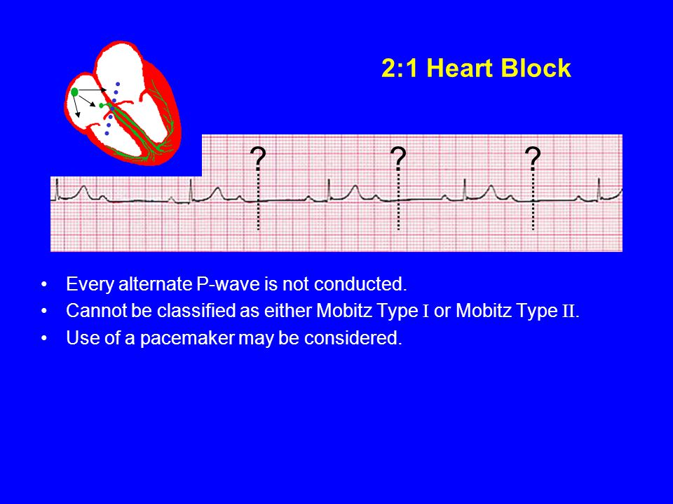2:1 Heart Block Every alternate P-wave is not conducted.