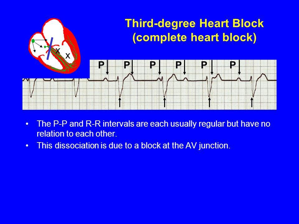 Third-degree Heart Block (complete heart block)