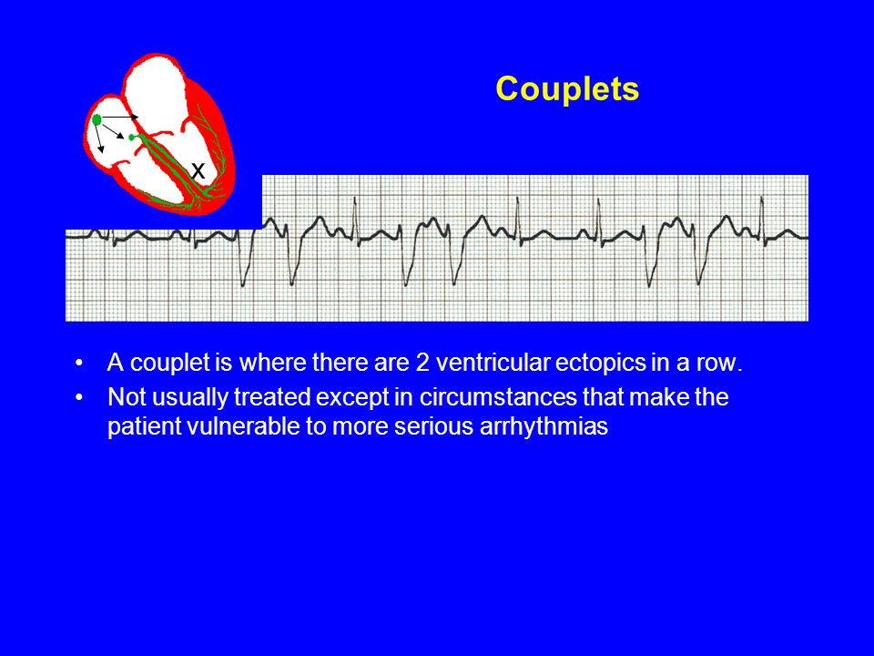 Couplets x. A couplet is where there are 2 ventricular ectopics in a row.