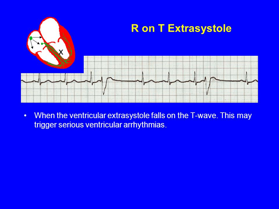 R on T Extrasystole x. When the ventricular extrasystole falls on the T-wave.
