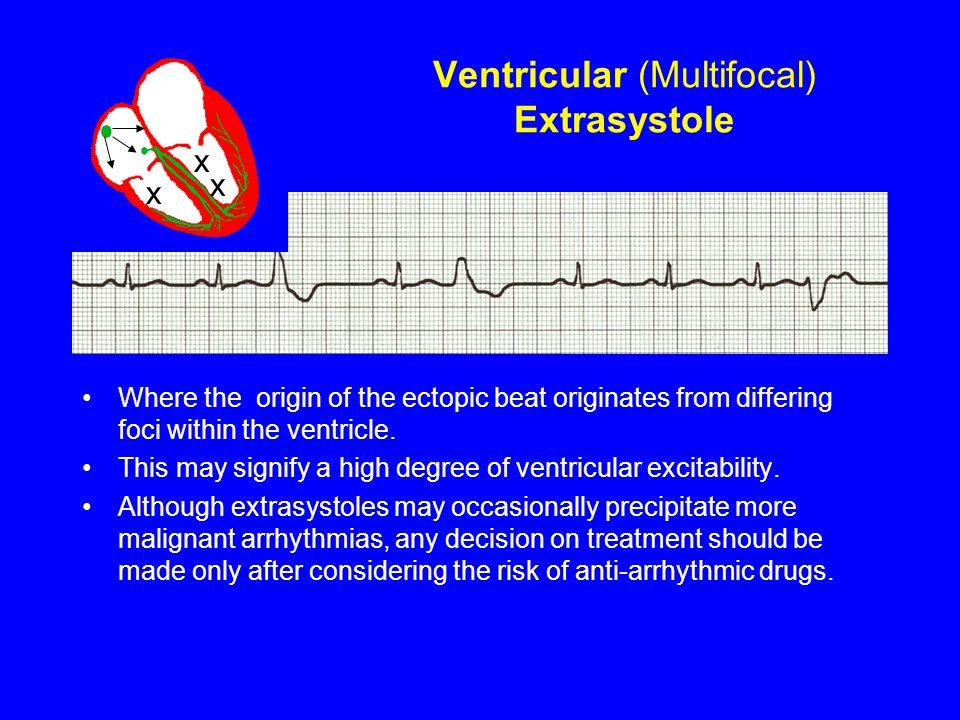 Ventricular (Multifocal) Extrasystole