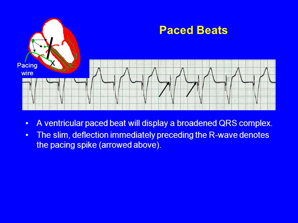 Paced Beats x. Pacing wire. A ventricular paced beat will display a broadened QRS complex.
