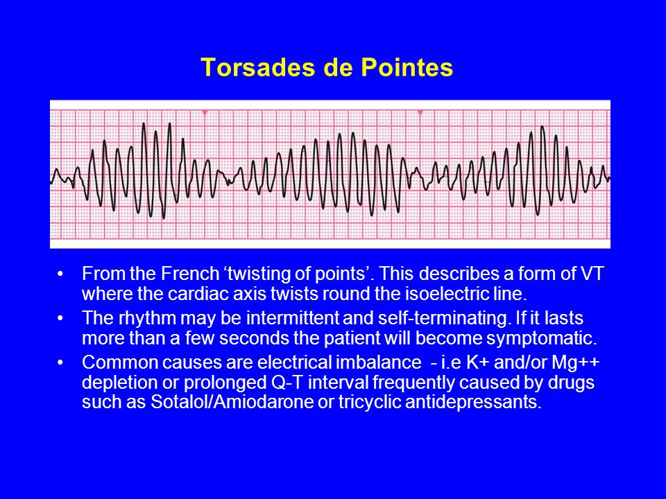 Torsades de Pointes From the French 'twisting of points'. This describes a form of VT where the cardiac axis twists round the isoelectric line.