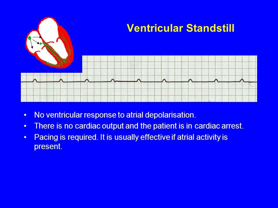 Ventricular Standstill
