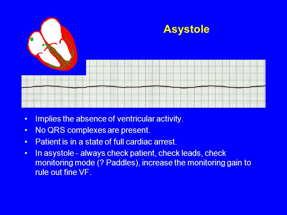 Asystole Implies the absence of ventricular activity.