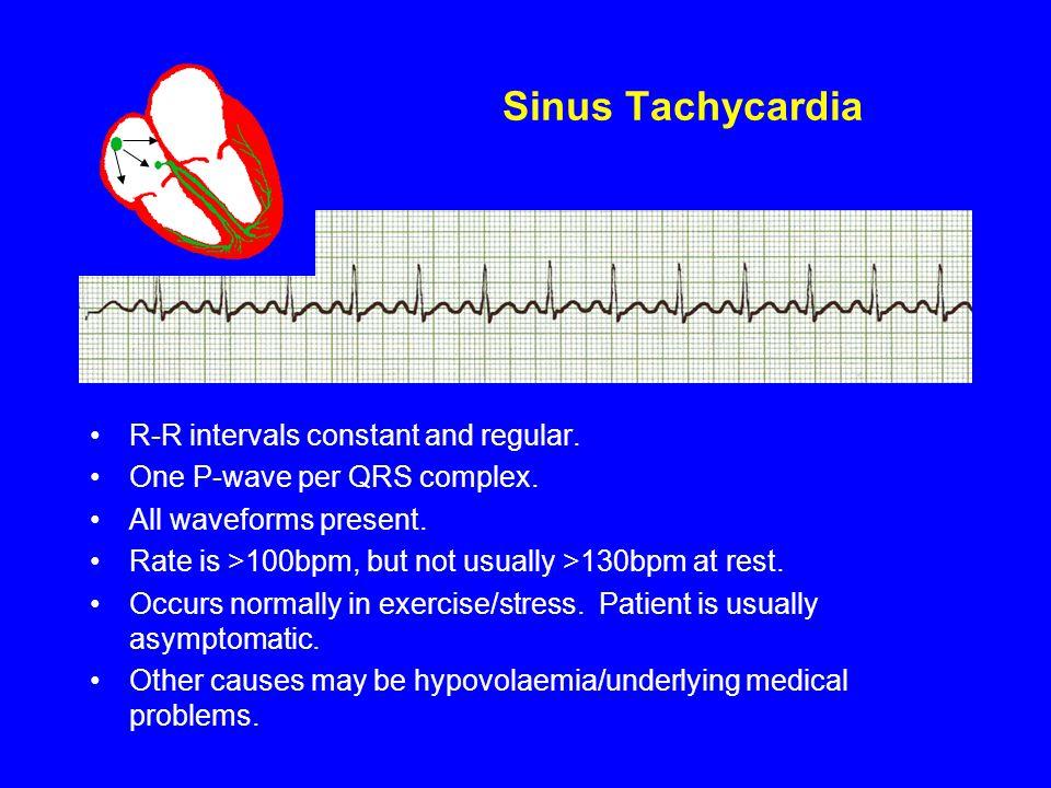 Sinus Tachycardia R-R intervals constant and regular.