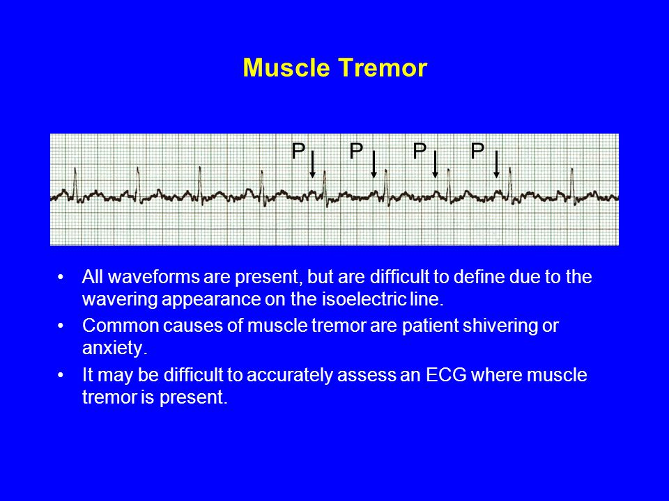 Muscle Tremor P P P P.