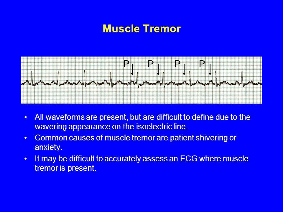 Muscle Tremor P P P P.