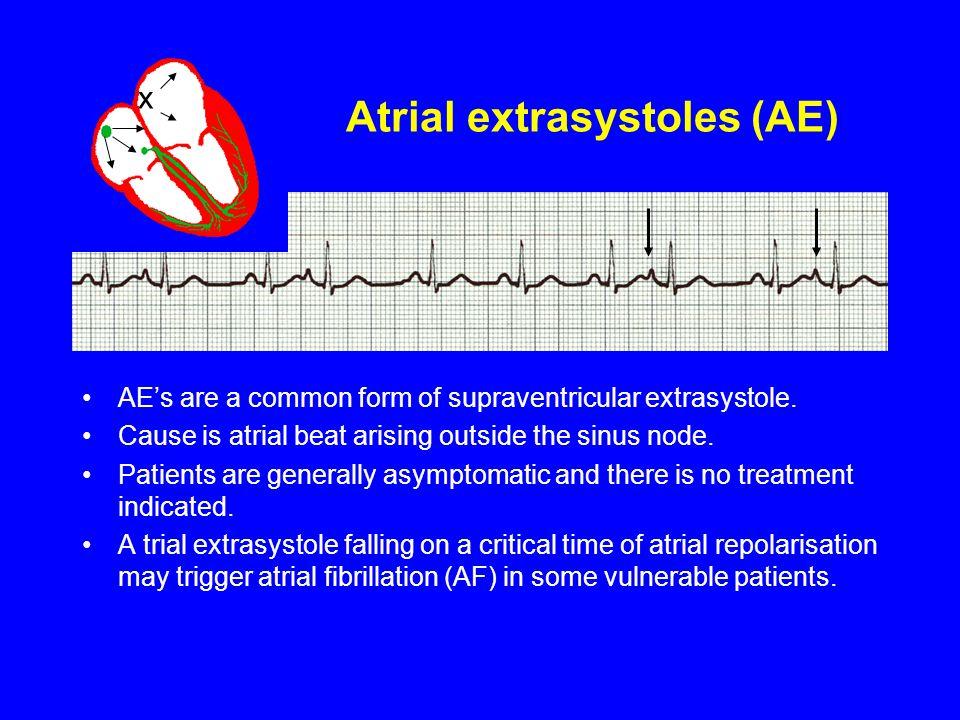 Atrial extrasystoles (AE)
