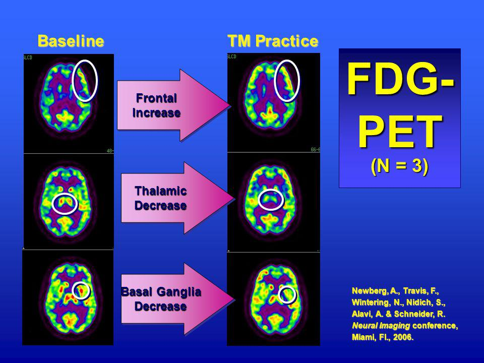 FDG-PET (N = 3) Baseline TM Practice Frontal Increase Thalamic