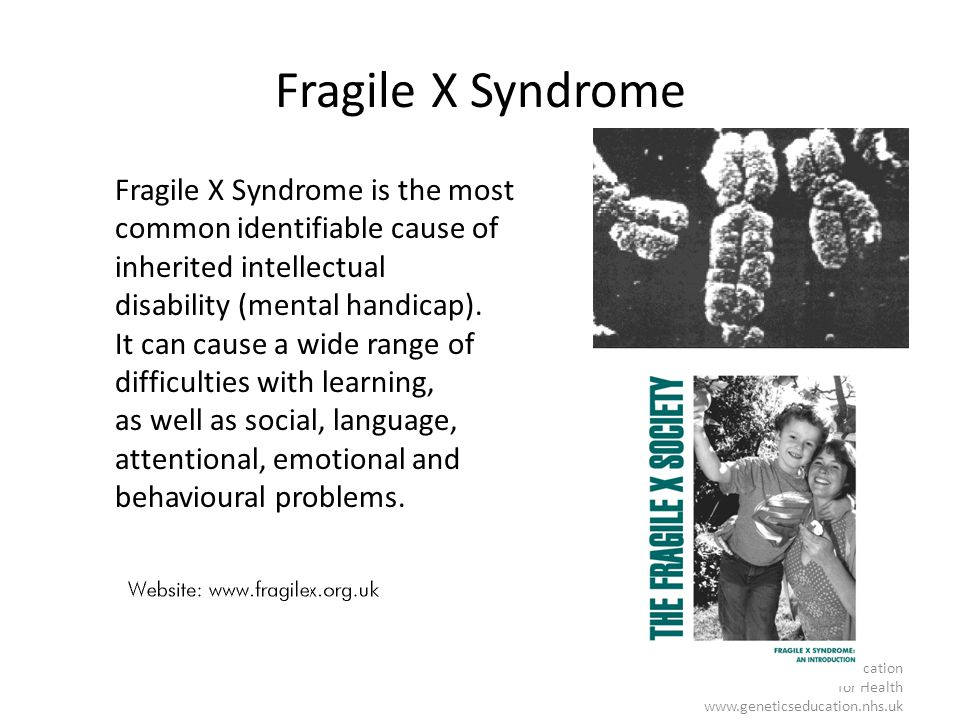 Fragile X Syndrome Fragile X Syndrome is the most common identifiable cause of inherited intellectual.
