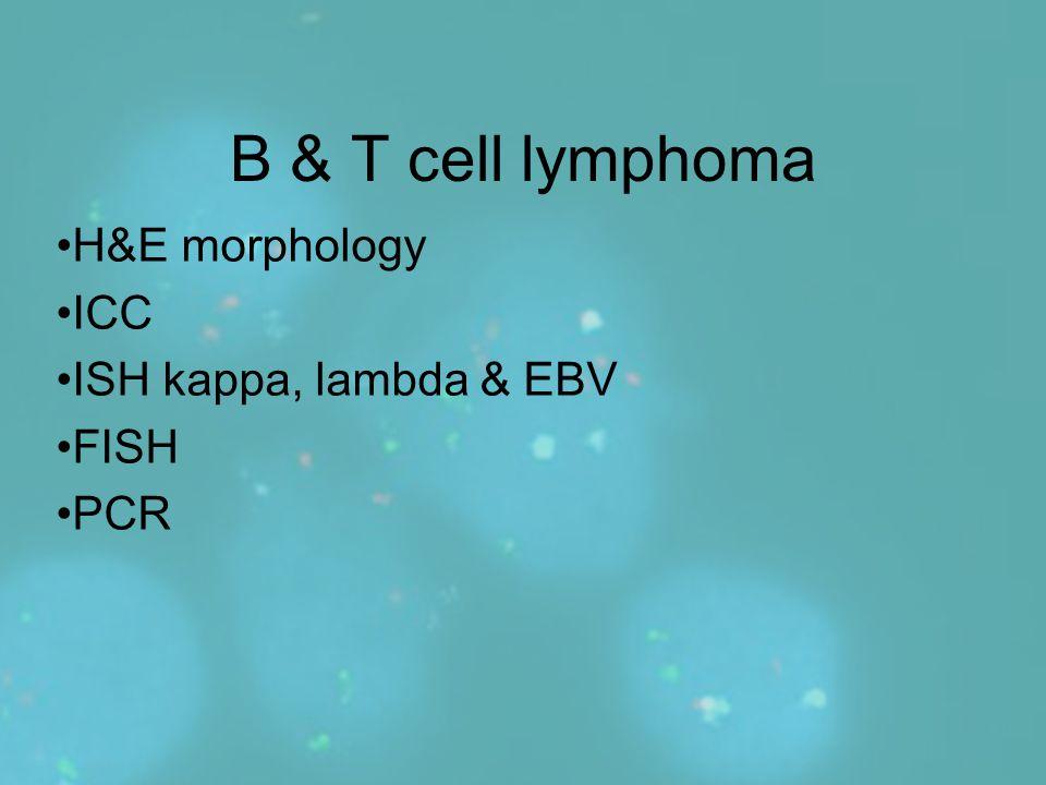 H&E morphology ICC ISH kappa, lambda & EBV FISH PCR