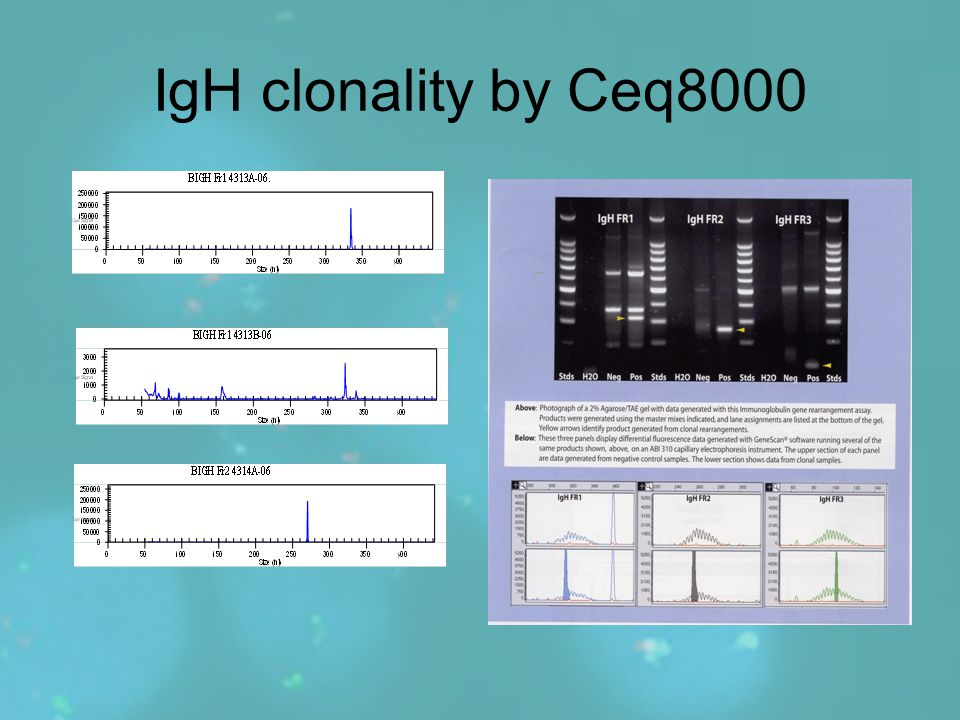IgH clonality by Ceq8000
