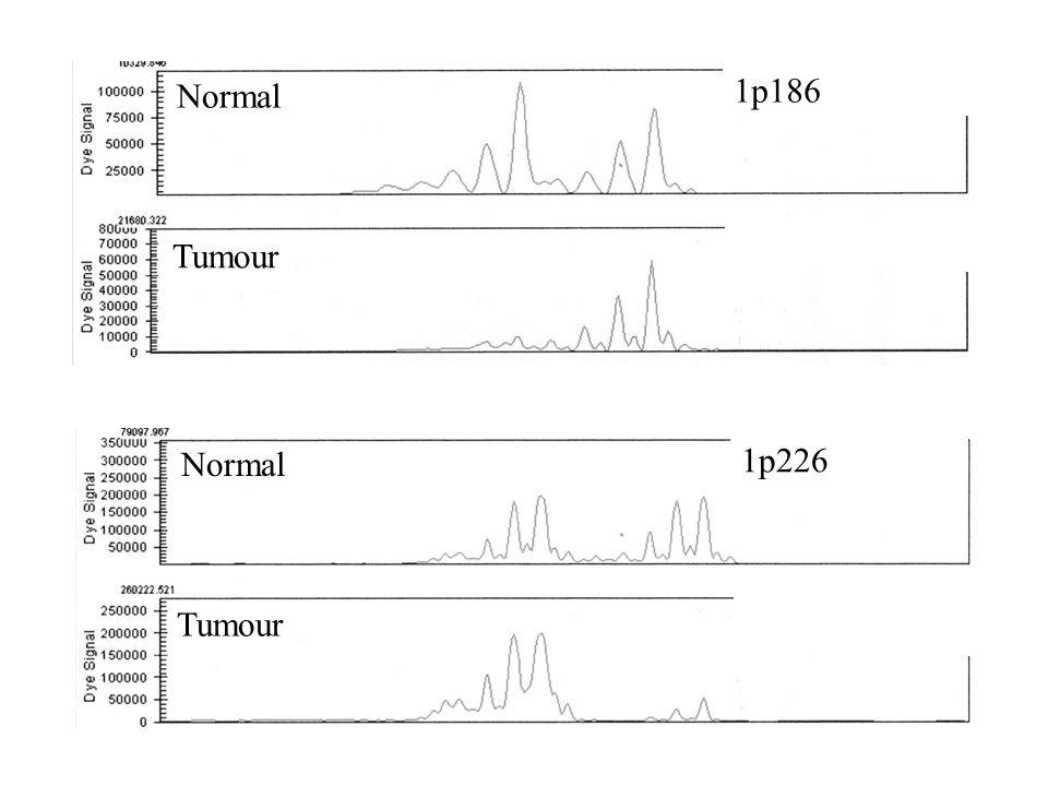 Normal 1p186 Tumour Normal 1p226 Tumour