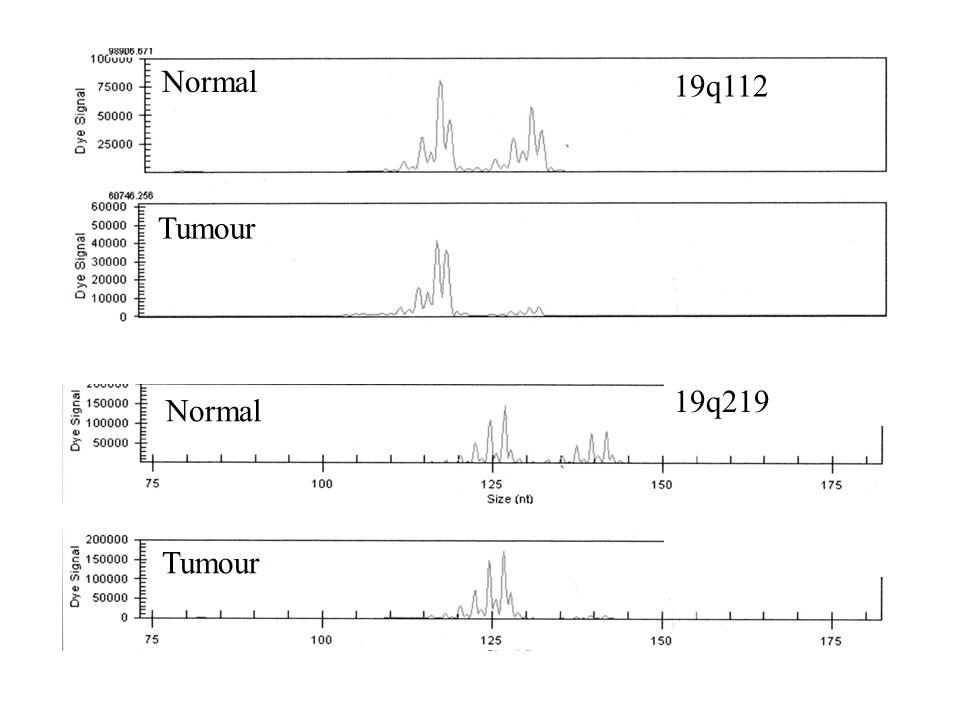 Normal 19q112 Tumour 19q219 Normal Tumour