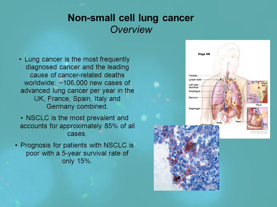 Non-small cell lung cancer Overview