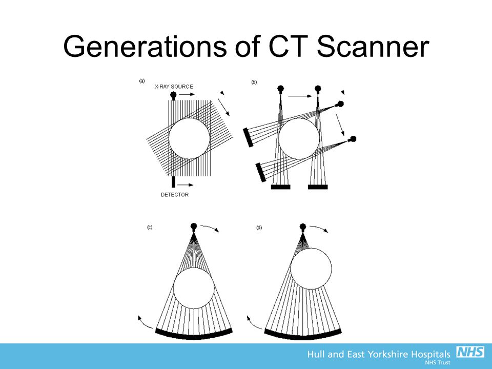 Generations of CT Scanner