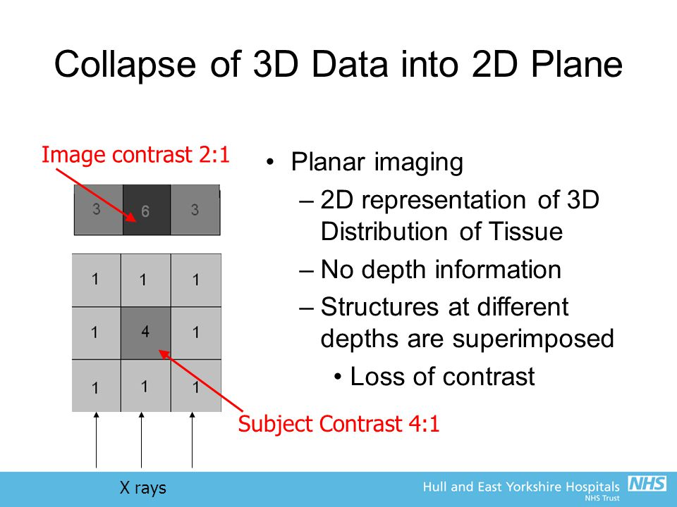 Collapse of 3D Data into 2D Plane