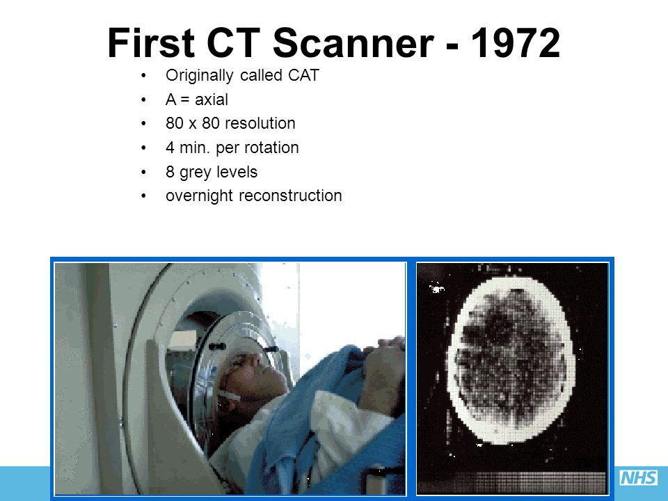 First CT Scanner - 1972 Originally called CAT A = axial