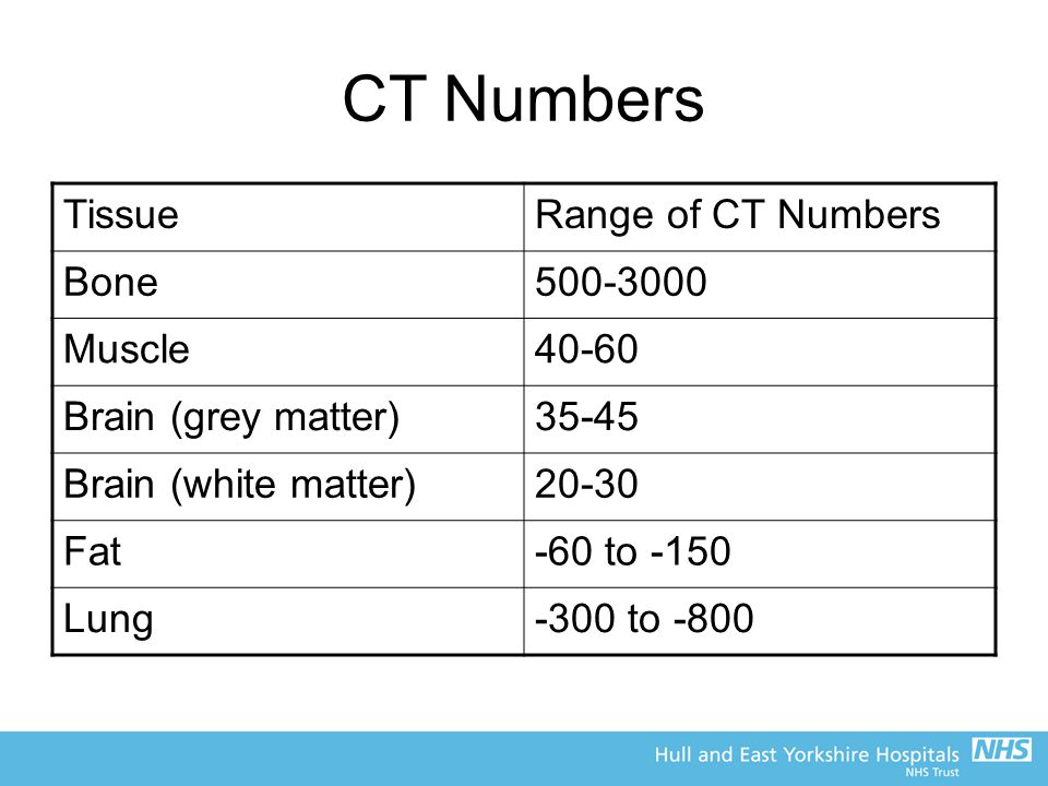 CT Numbers Tissue Range of CT Numbers Bone 500-3000 Muscle 40-60