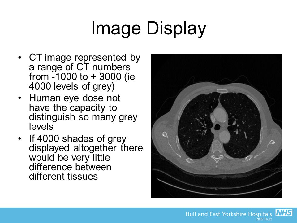Image Display CT image represented by a range of CT numbers from -1000 to + 3000 (ie 4000 levels of grey)