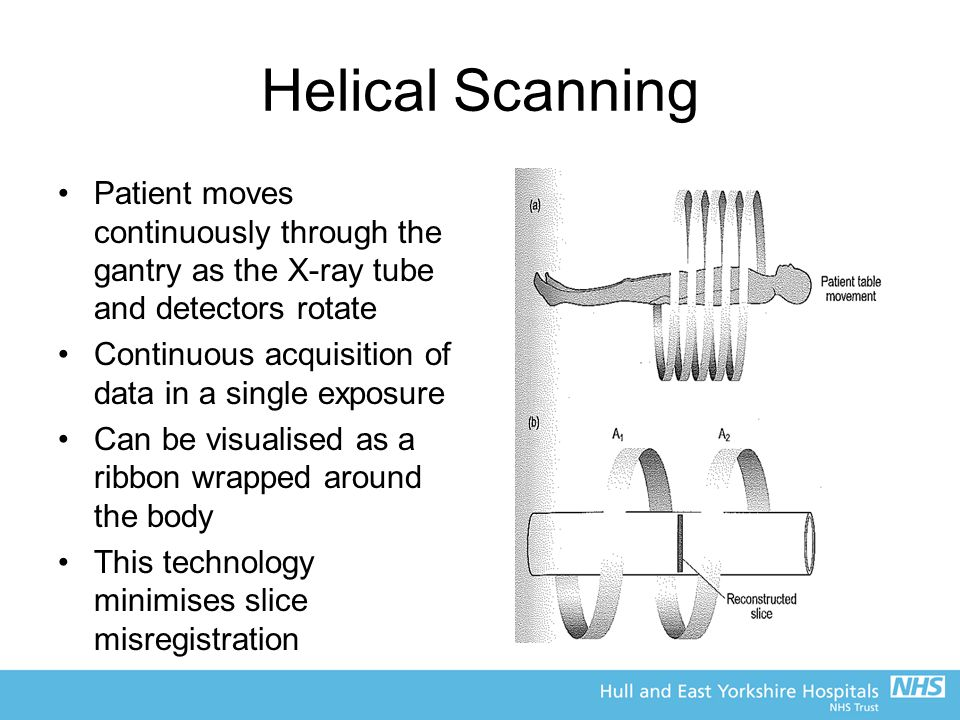 Helical Scanning Patient moves continuously through the gantry as the X-ray tube and detectors rotate.