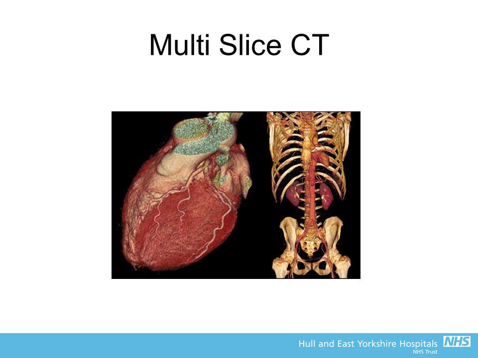 Multi Slice CT