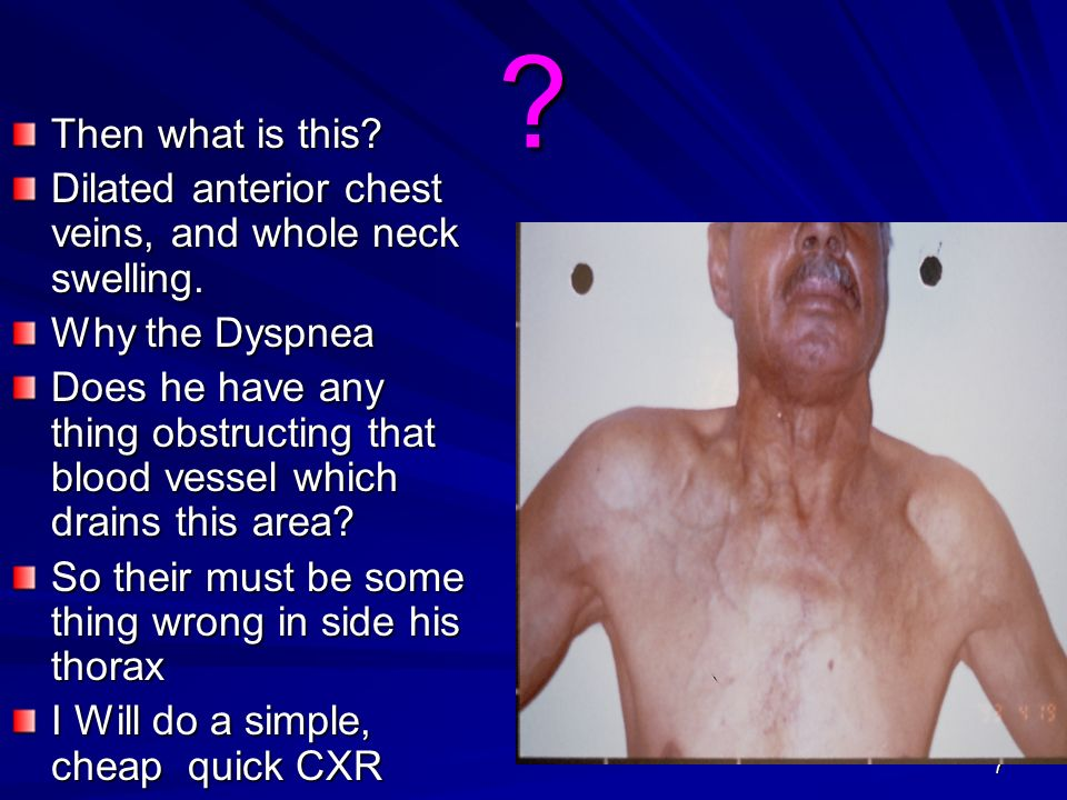 Then what is this Dilated anterior chest veins, and whole neck swelling. Why the Dyspnea.
