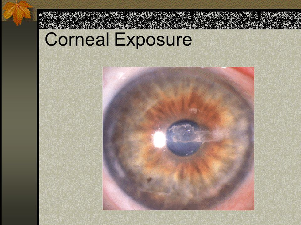 Corneal Exposure