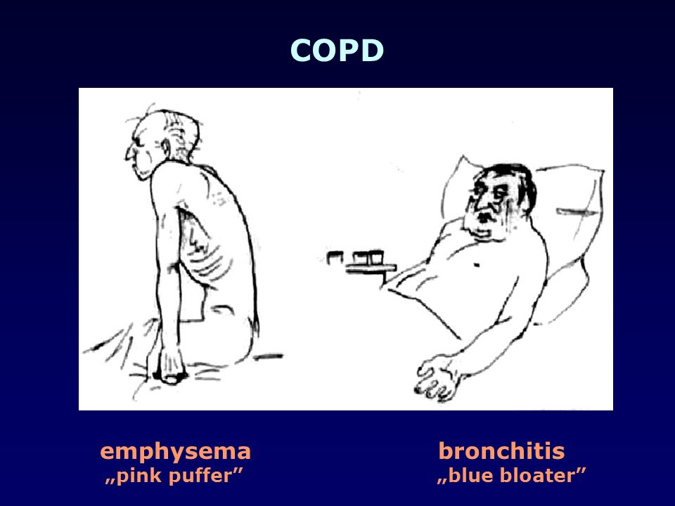 COPD emphysema bronchitis.