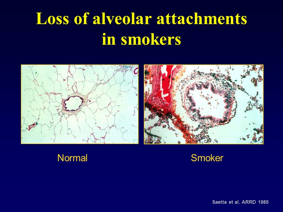 Loss of alveolar attachments in smokers
