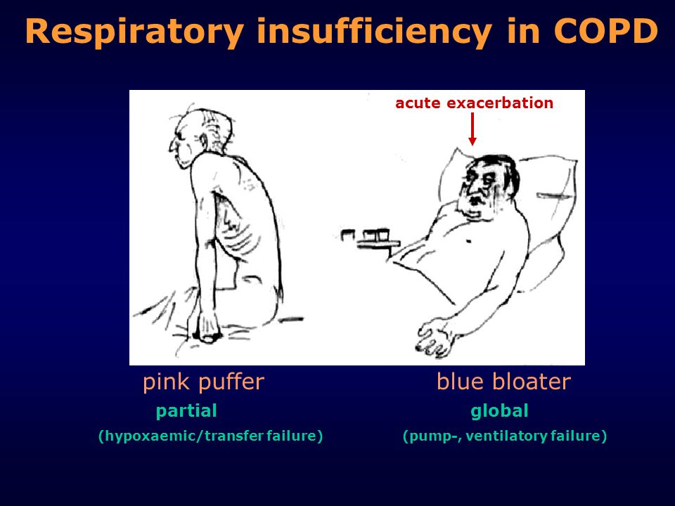 Respiratory insufficiency in COPD