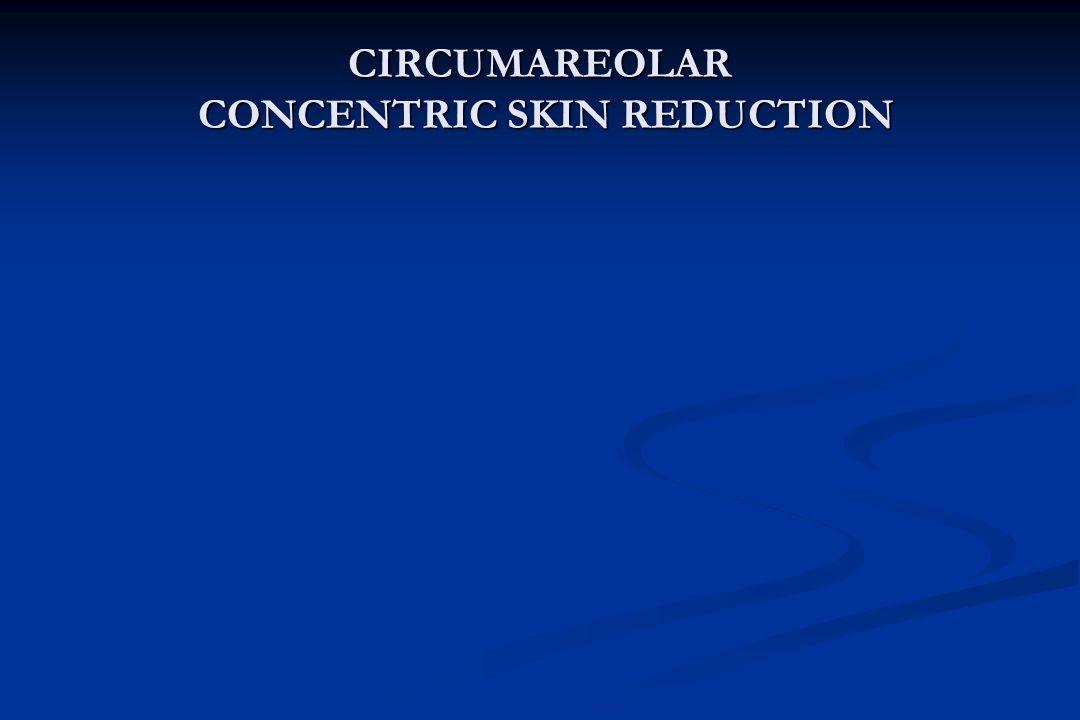 CIRCUMAREOLAR CONCENTRIC SKIN REDUCTION