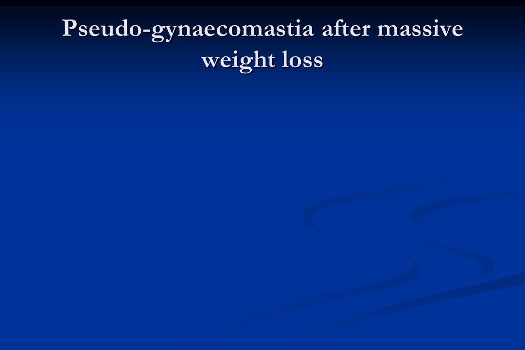Pseudo-gynaecomastia after massive weight loss