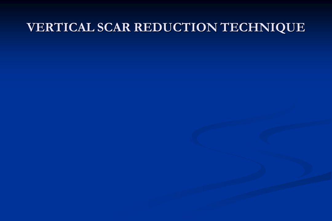 VERTICAL SCAR REDUCTION TECHNIQUE