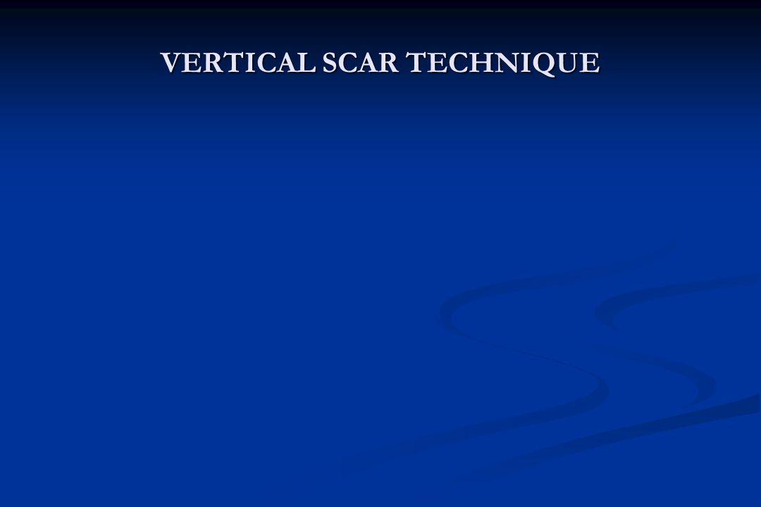 VERTICAL SCAR TECHNIQUE