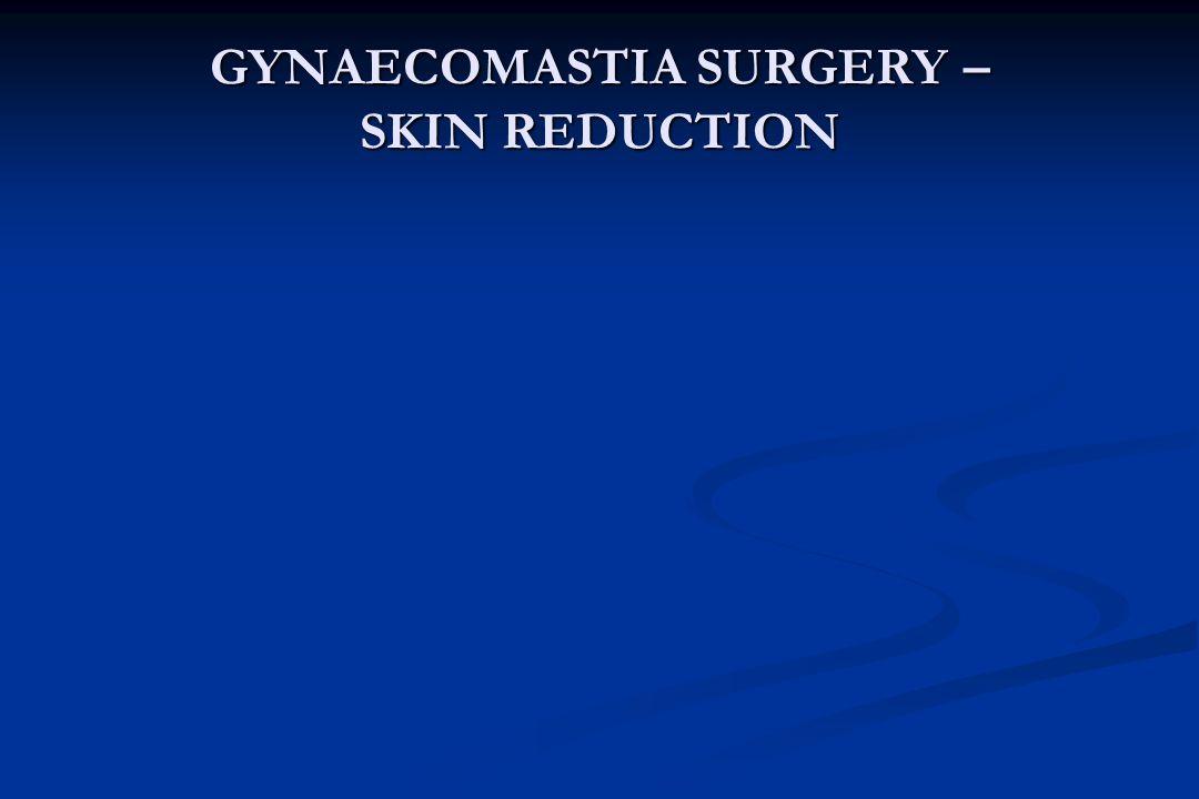 GYNAECOMASTIA SURGERY – SKIN REDUCTION
