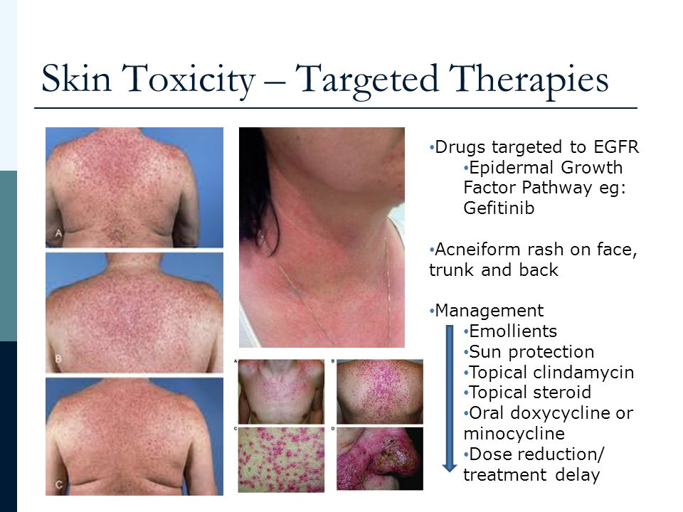 topical steroid dose for eczema