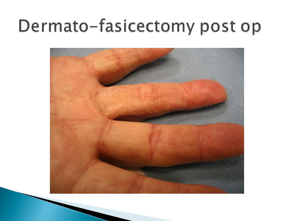 Dermato-fasicectomy post op